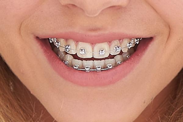 Incidents et urgences dentaires orthodontiste le mans - Cabinet dentaire le mans ...