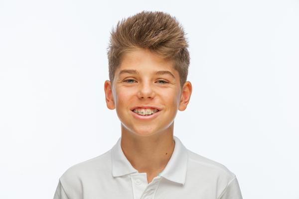 Les traitements dentaires de 4 a 11 ans orthodontiste le mans - Cabinet dentaire le mans ...